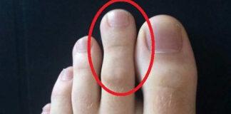 Degetul sau sindromul lui Morton. Al doilea deget de la picior este mai lung