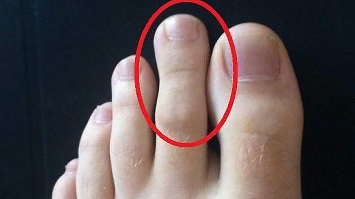 artrita celui de al doilea deget