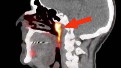 Organul misterios din centrul capului tuturor oamenilor. Ce cred cercetătorii că este, de fapt