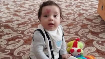 S-a născut cu o inimă pe frunte. La vârsta de 4 ani, i-a șocat pe toți! E incredibil ce s-a întâmplat copilului